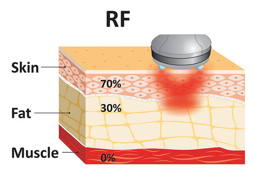 radiofrequency-or-microwaves-patent-Onda-Coolwaves